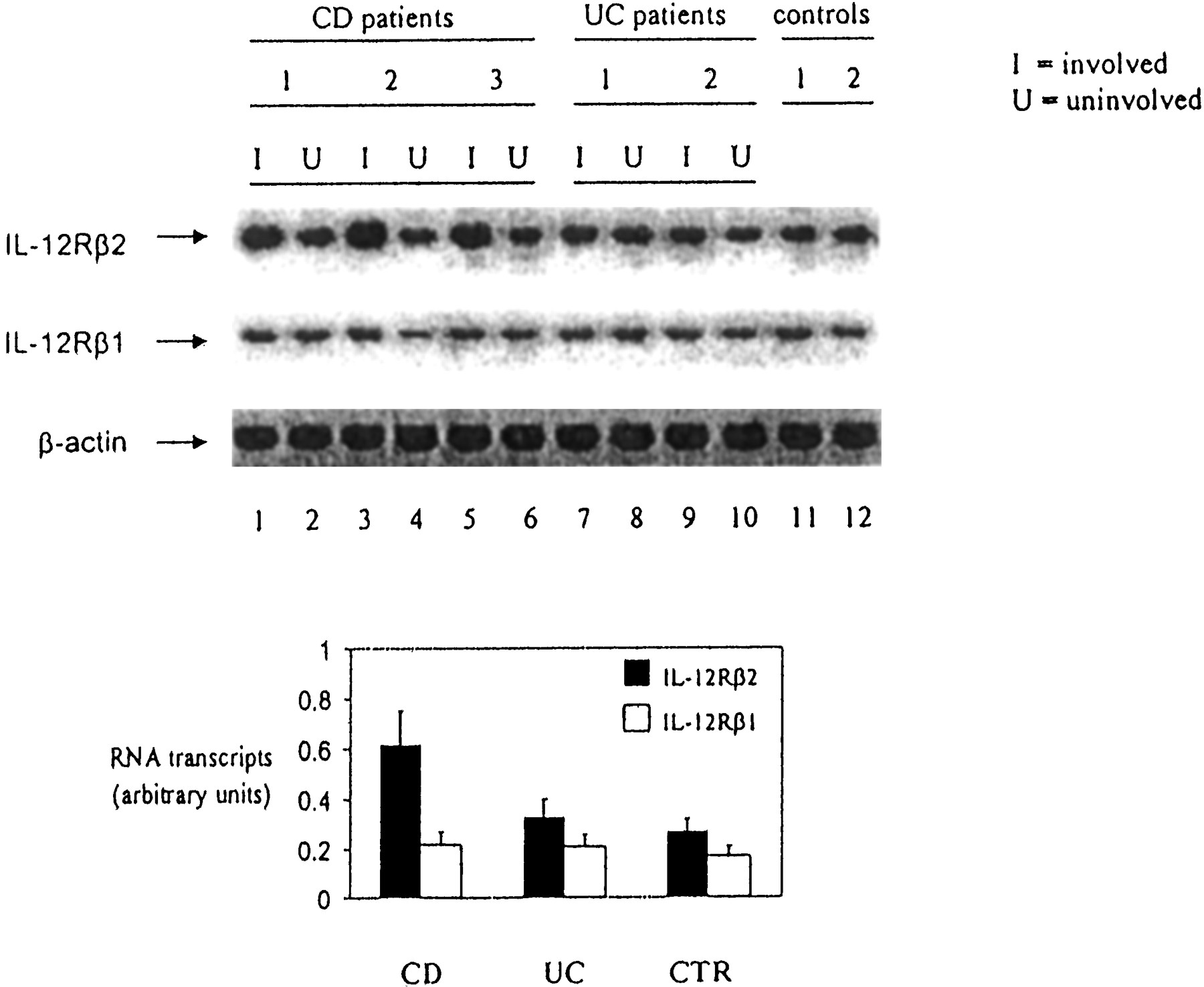 Up Regulation Of The IL 12 Receptor β2 Chain In Crohn S Disease