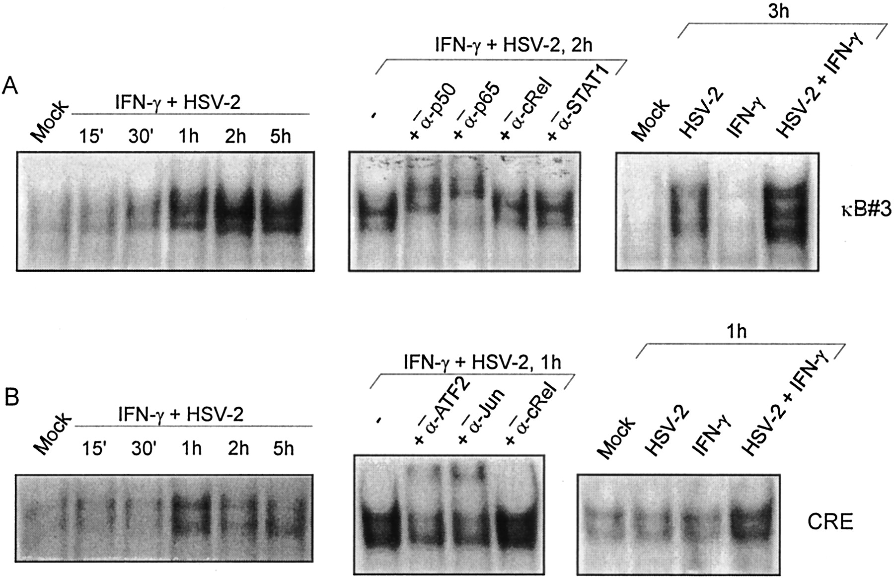 Expression of TNF-α by Herpes Simplex Virus-Infected Macrophages Is