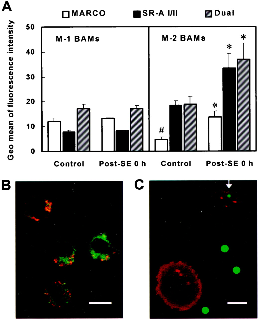C57BL/6 and BALB/c Bronchoalveolar Macrophages Respond Differently