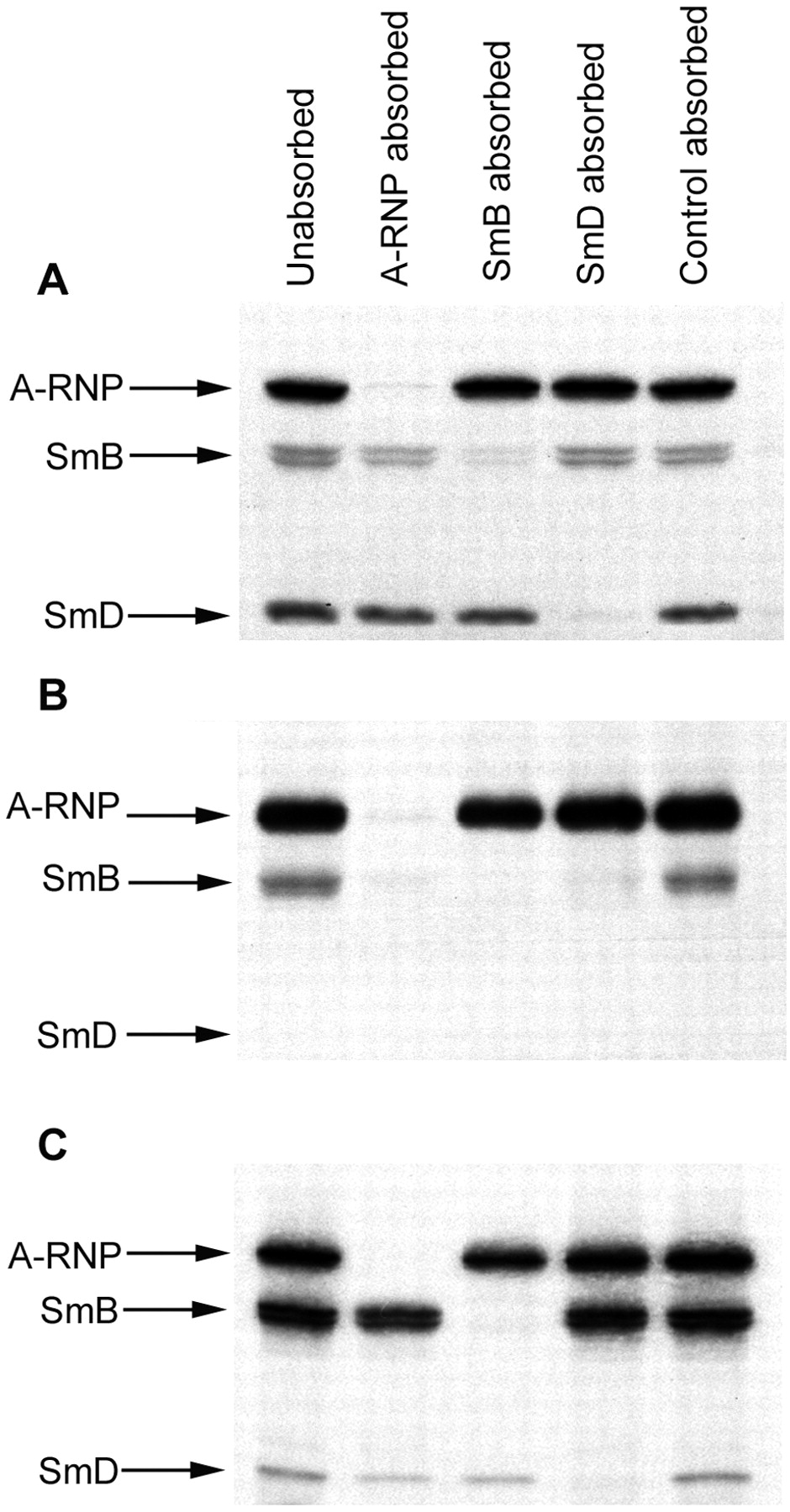 Immune Responses to Small Nuclear Ribonucleoproteins: Antigen