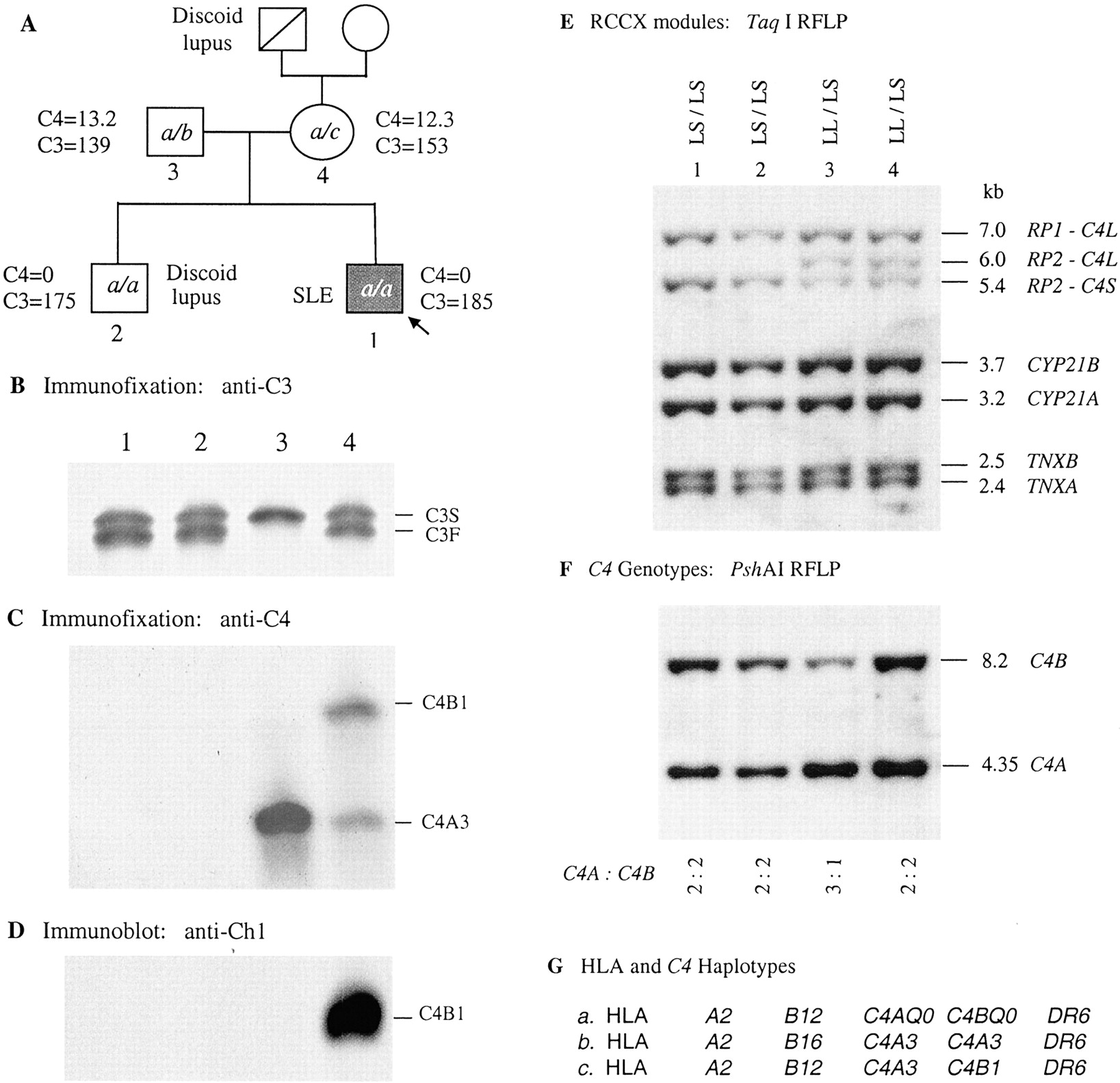 The Molecular Basis of Complete Complement C4A and C4B