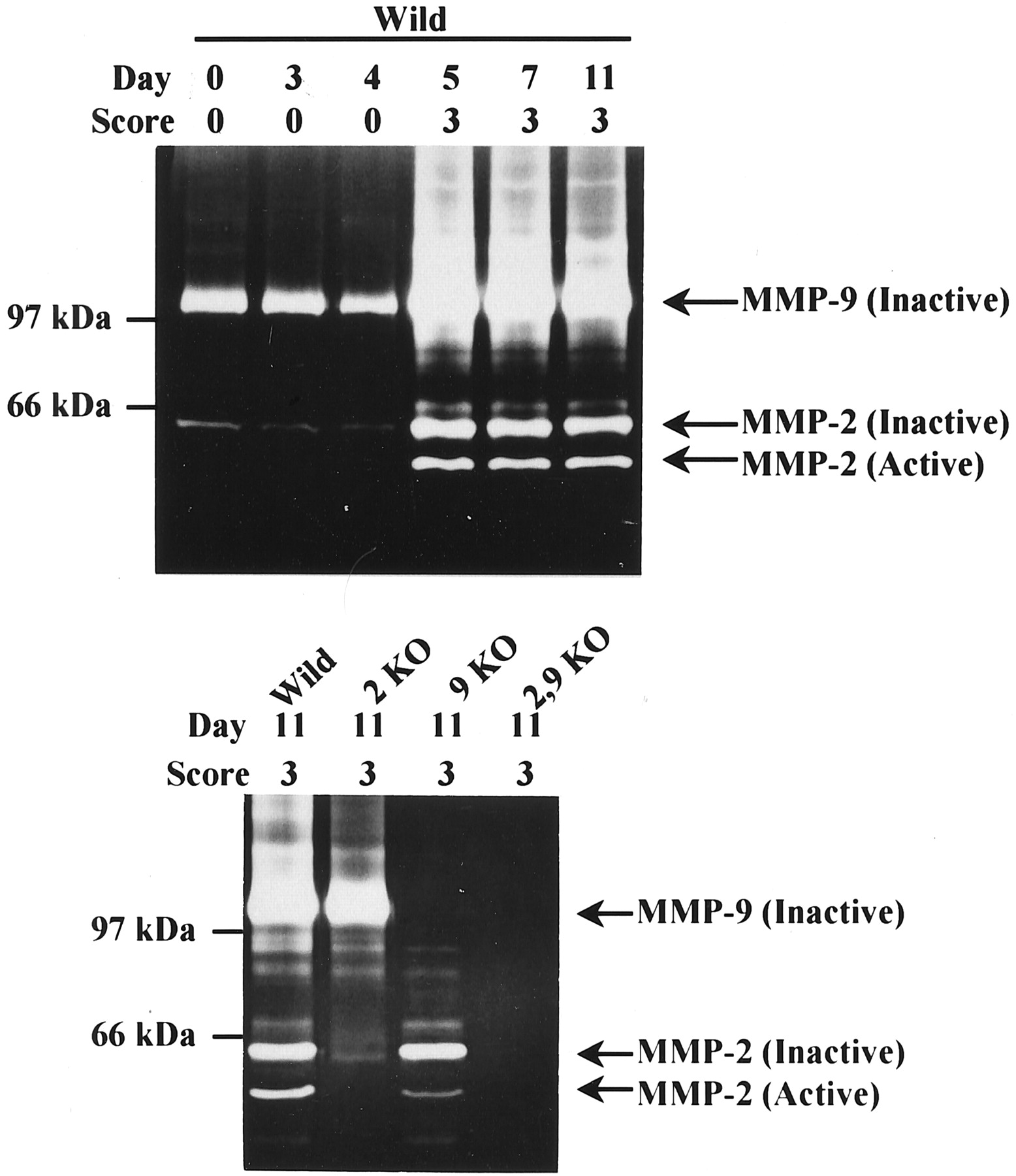 The Role Of Matrix Metalloproteinase 2 And