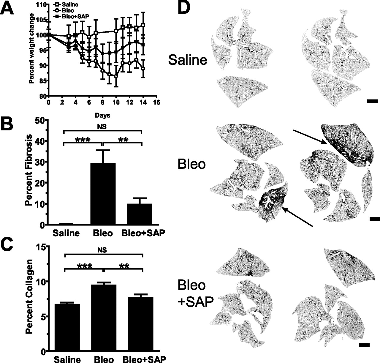 Reduction of Bleomycin-Induced Pulmonary Fibrosis by Serum Amyloid P