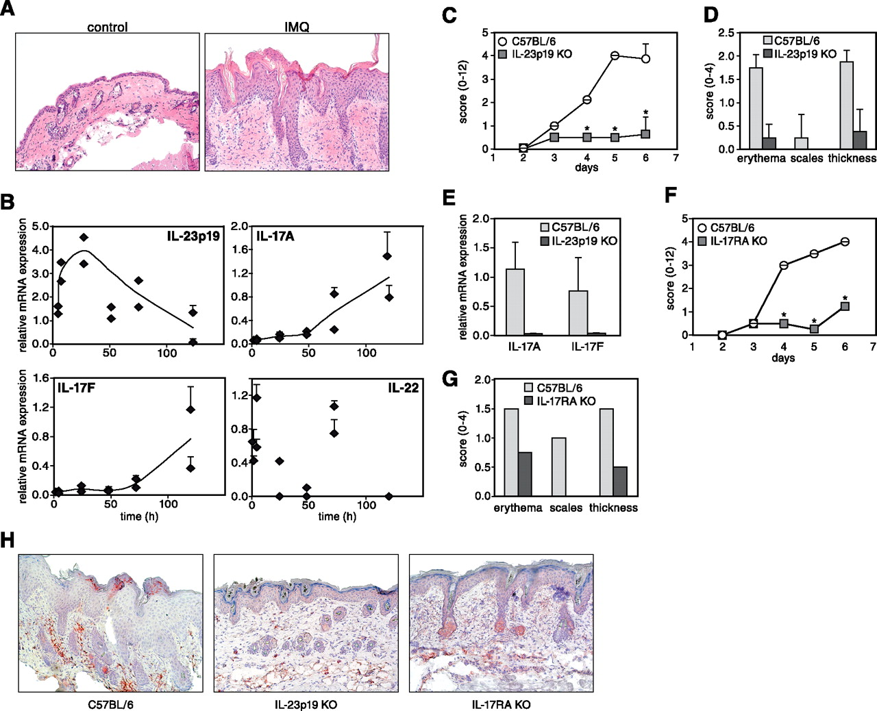 Imiquimod Induced Psoriasis Like Skin Inflammation In Mice Is