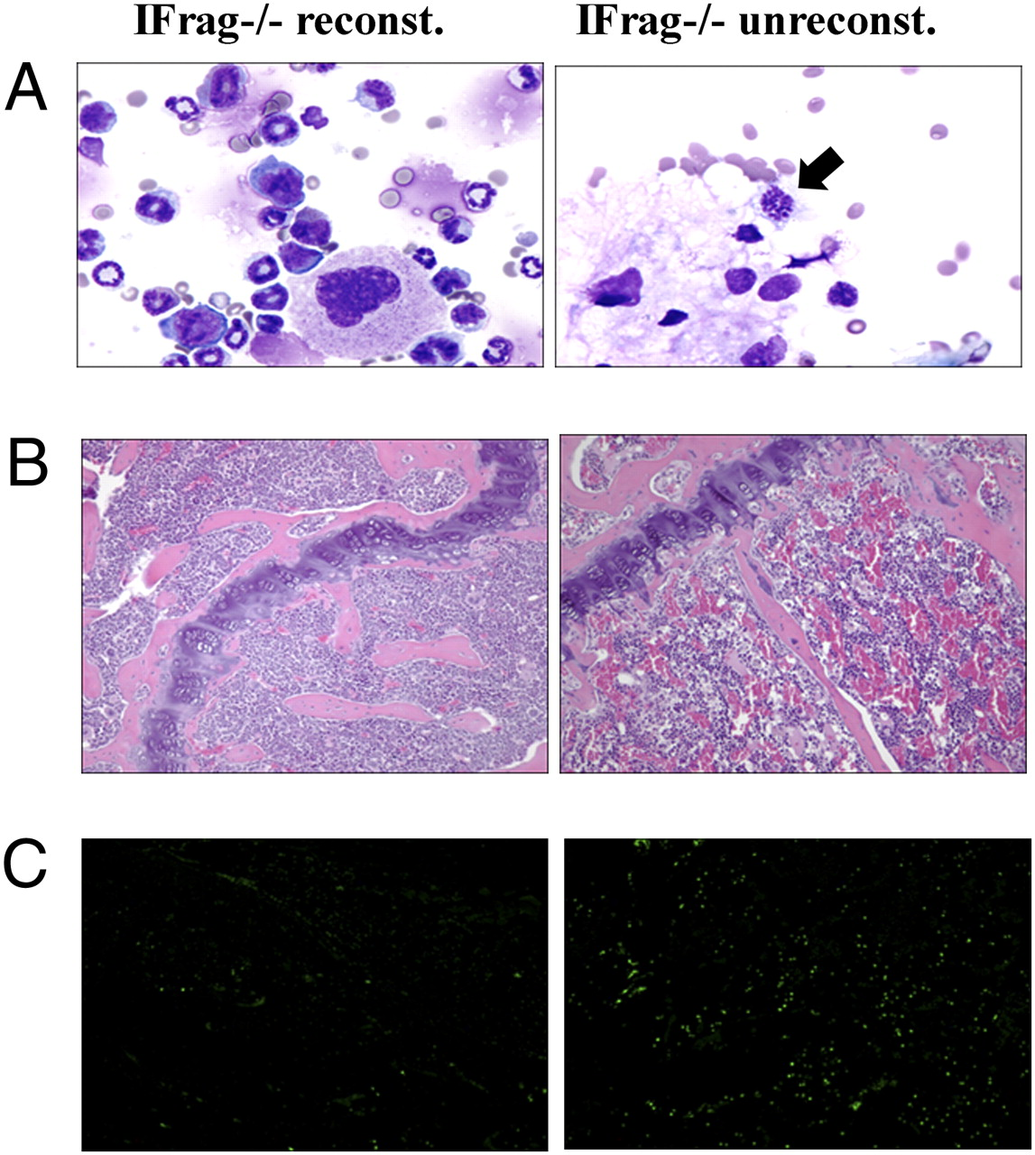 Prevention of Bone Marrow Cell Apoptosis and Regulation of
