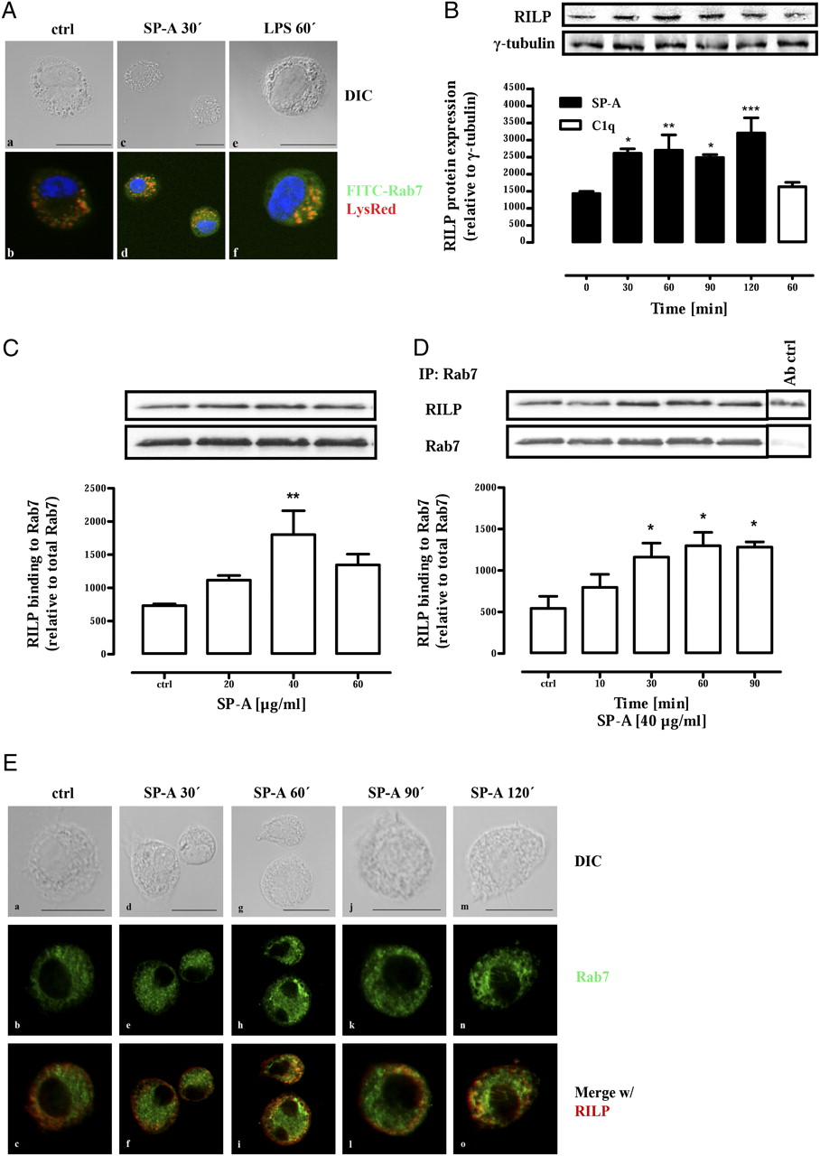 Pulmonary Surfactant Protein A Enhances Endolysosomal Trafficking In Powerpoint Slide Traffic Signal Diagram Multicolor 3 Lights Mp Download Figure Open New Tab