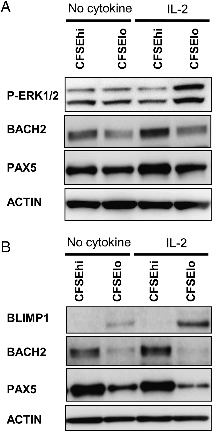 IL-2 Requirement for Human Plasma Cell Generation: Coupling