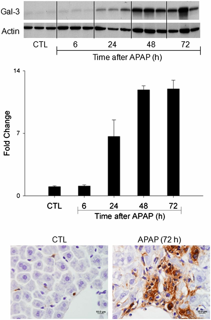 Role Of Galectin 3 In Classical And Alternative Macrophage