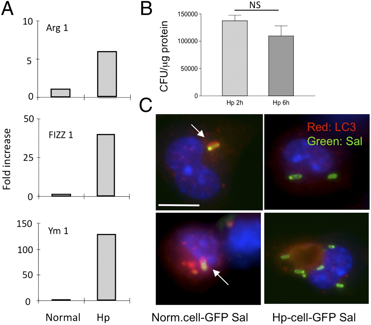 Helminth Infection Impairs Autophagy-Mediated Killing of Bacterial