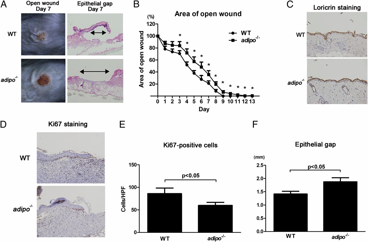 Adiponectin Regulates Cutaneous Wound Healing by Promoting
