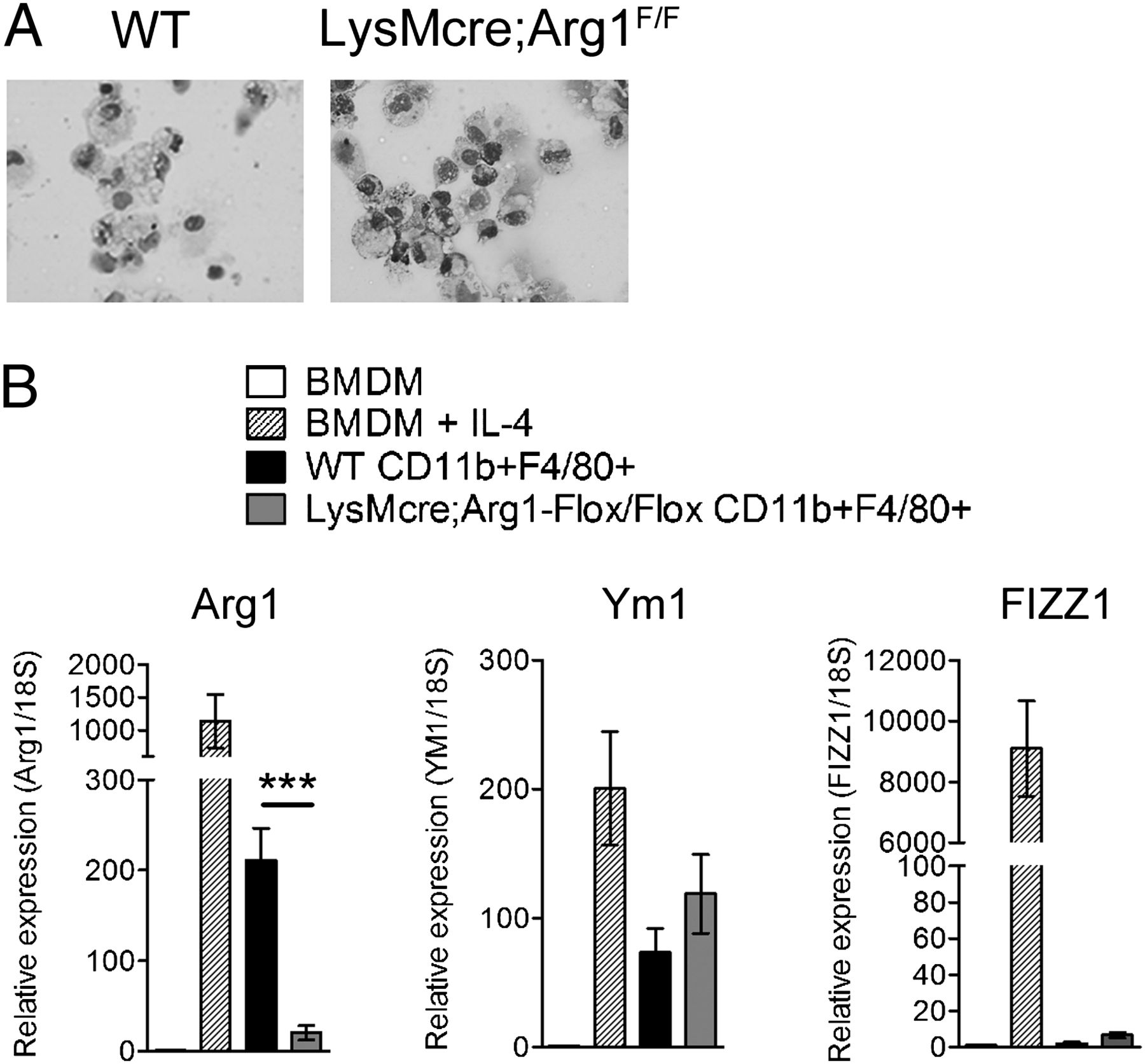 Genetic Ablation of Arginase 1 in Macrophages and
