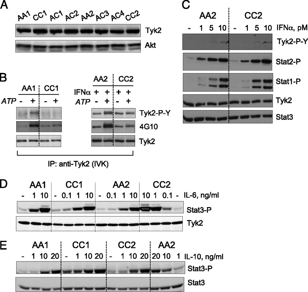Two Rare Disease-Associated Tyk2 Variants Are Catalytically