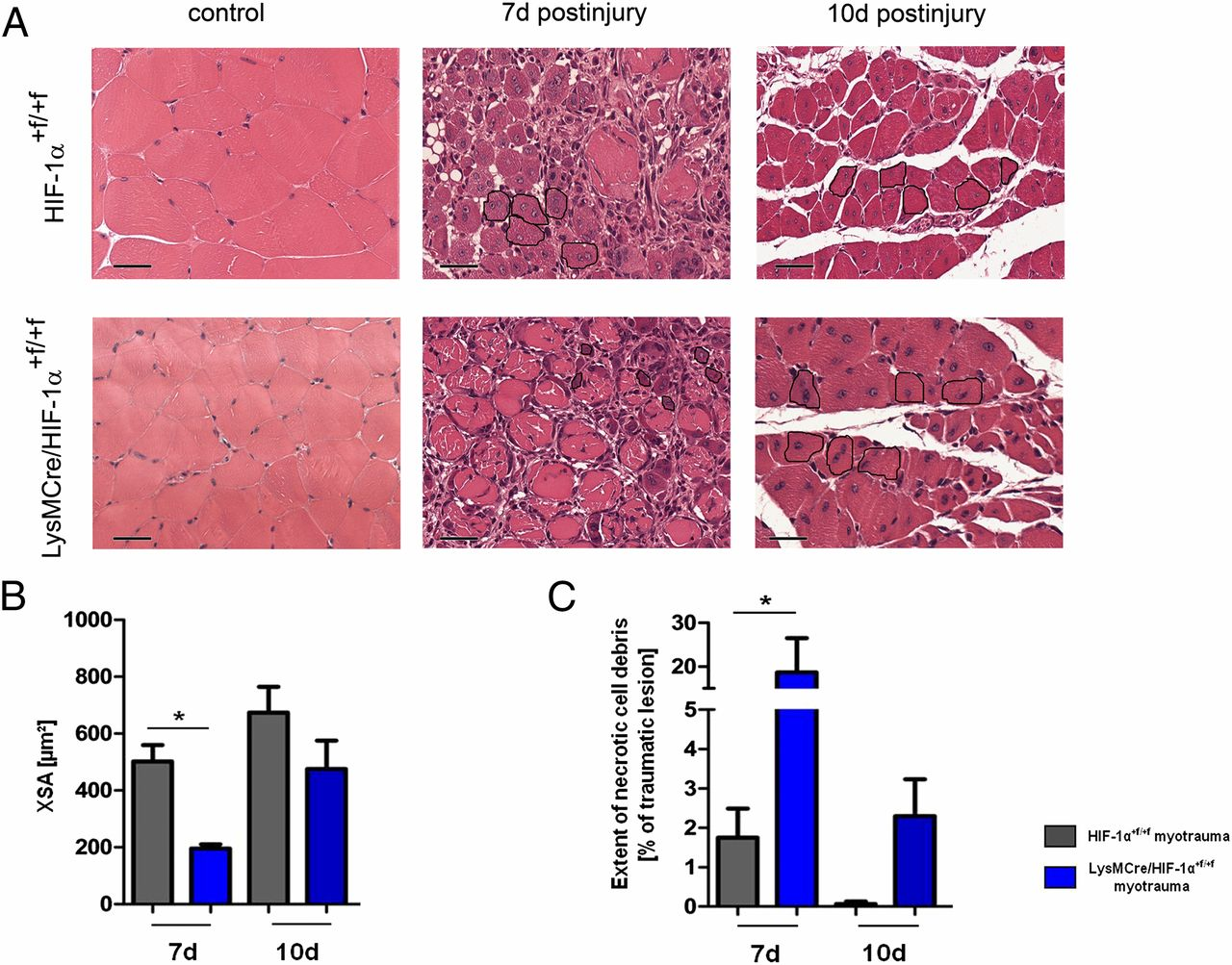 Myeloid Hypoxia Inducible Factor 1 Is Essential For Skeletal Muscle
