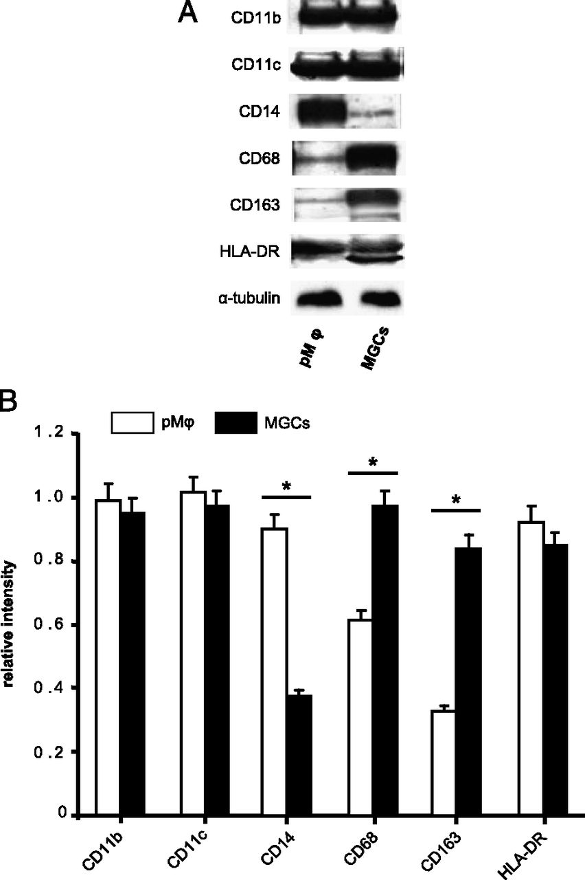 Placental Macrophages Are Impaired in Chorioamnionitis, an
