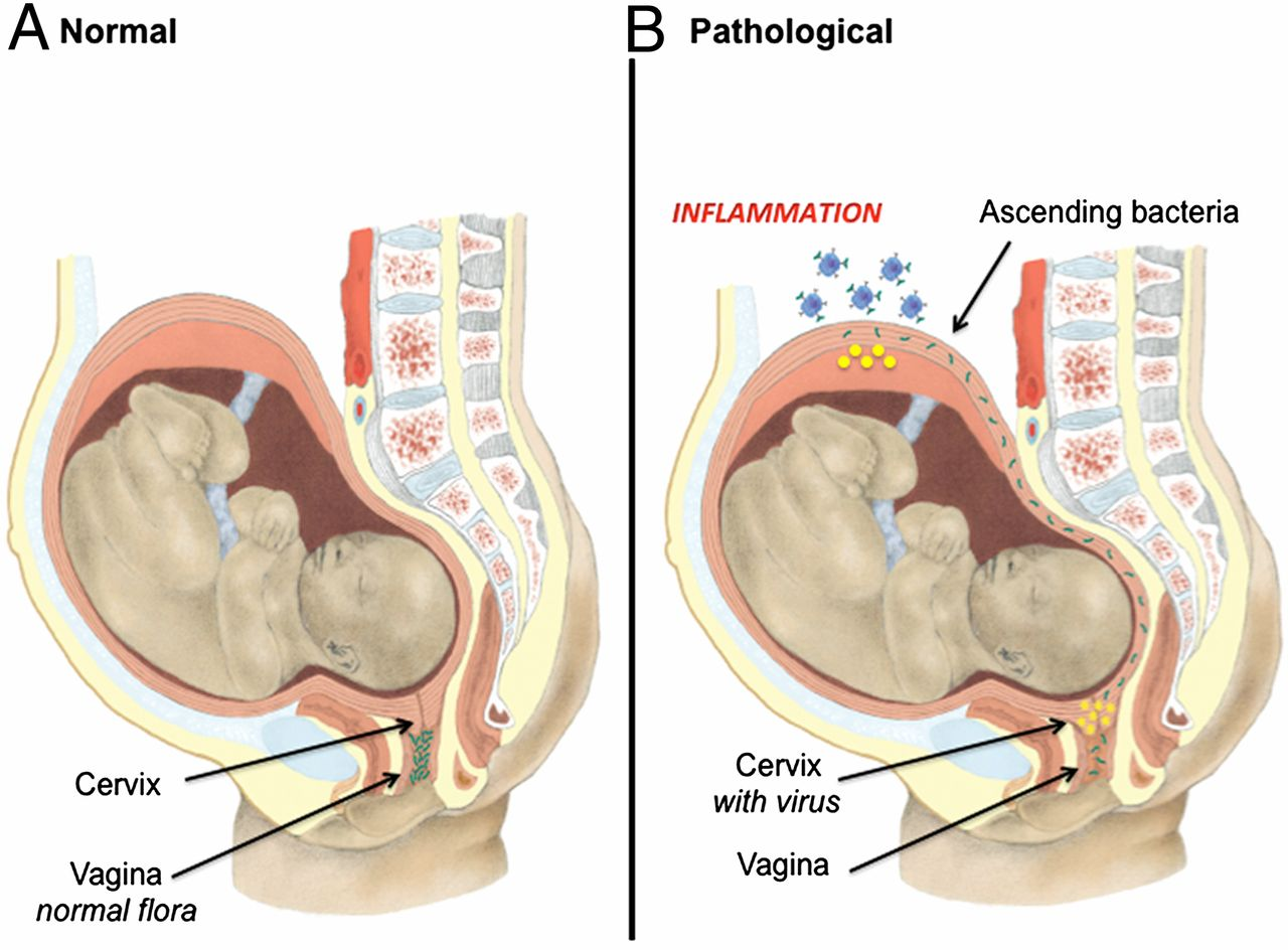 Viral Infection of the Pregnant Cervix Predisposes to Ascending ...