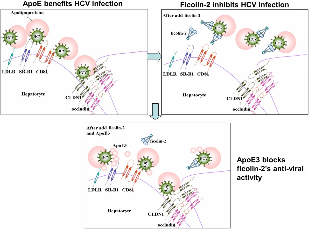 Ficolin-2 Inhibits Hepatitis C Virus Infection, whereas