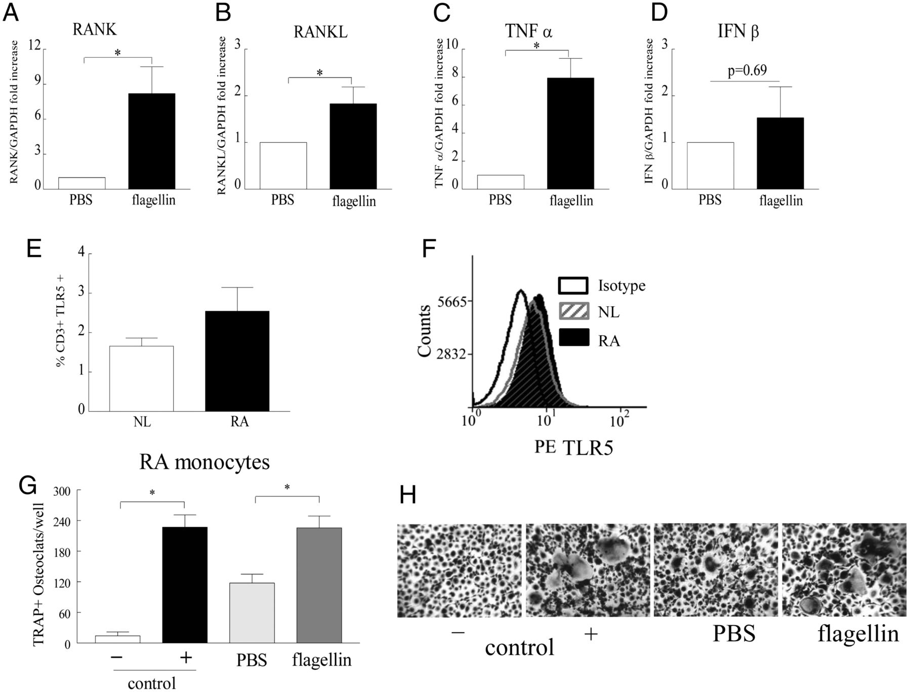 Ligation of TLR5 Promotes Myeloid Cell Infiltration and ...