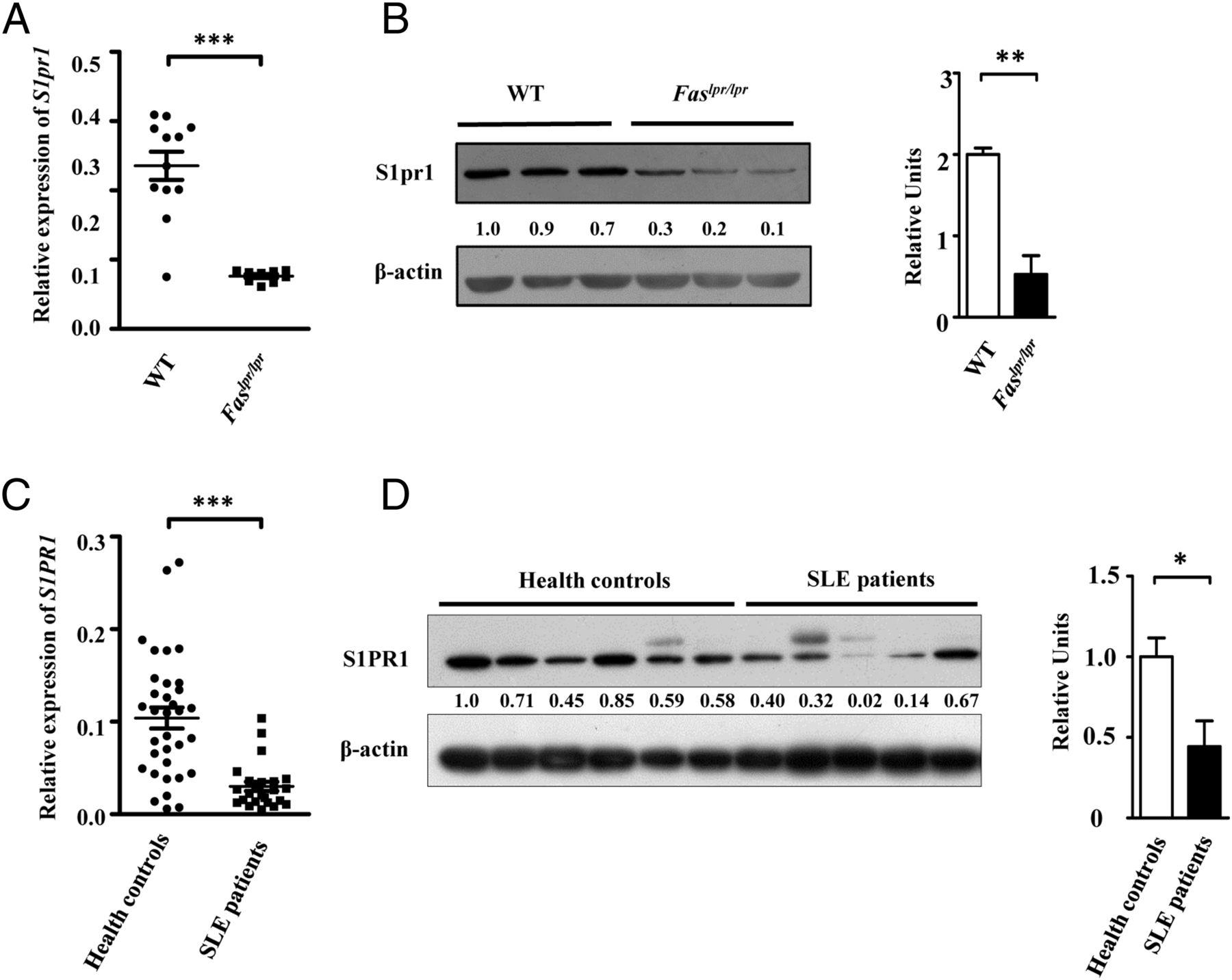 miR-155 Deficiency Ameliorates Autoimmune Inflammation of Systemic