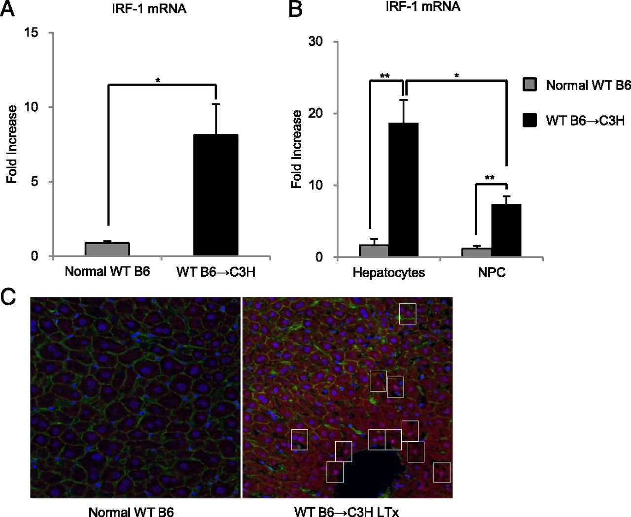 IRF-1 Promotes Liver Transplant Ischemia/Reperfusion Injury via