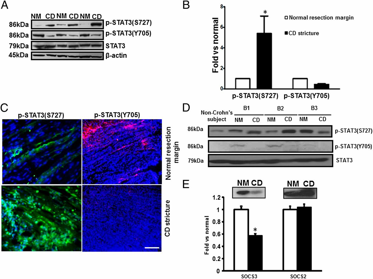 Noncanonical STAT3 Activation Regulates Excess TGF-β1 and
