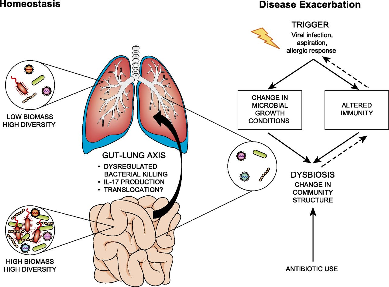 The Lung Microbiome Immunity And The Pathogenesis Of