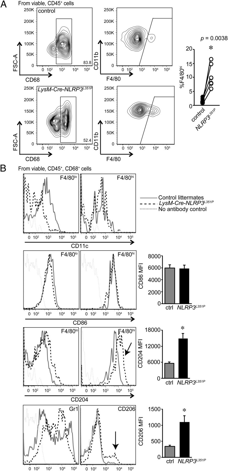 IL-1β and Inflammasome Activity Link Inflammation to