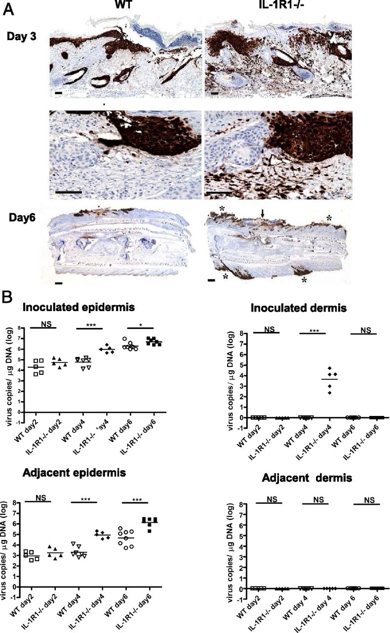 IL-1R Type 1–Deficient Mice Demonstrate an Impaired Host