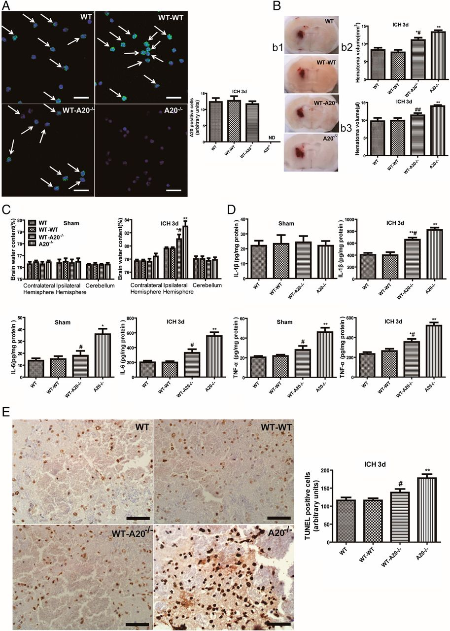 Ich B a20 ameliorates intracerebral hemorrhage induced inflammatory