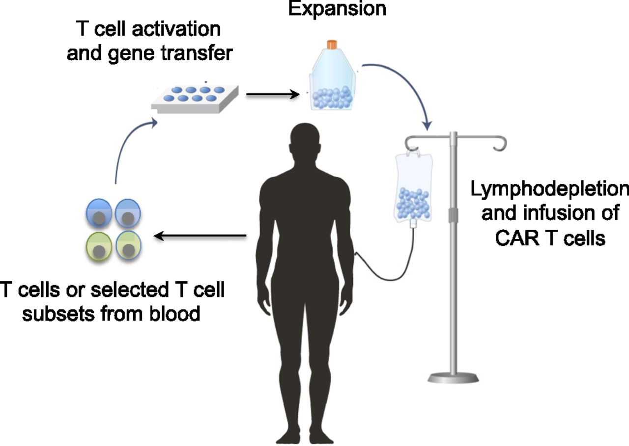Chimeric Antigen Receptor T Cell Therapy Challenges To