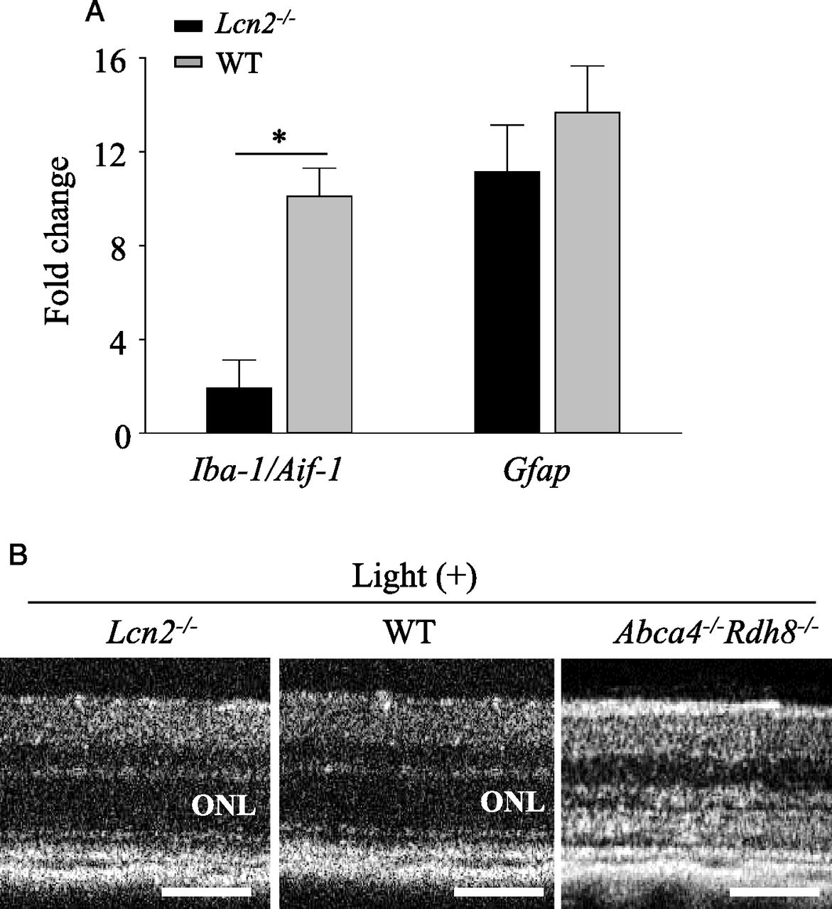 Lipocalin 2 Plays an Important Role in Regulating Inflammation in
