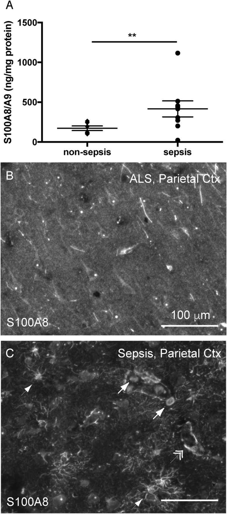 S100A8/A9 Drives Neuroinflammatory Priming and Protects