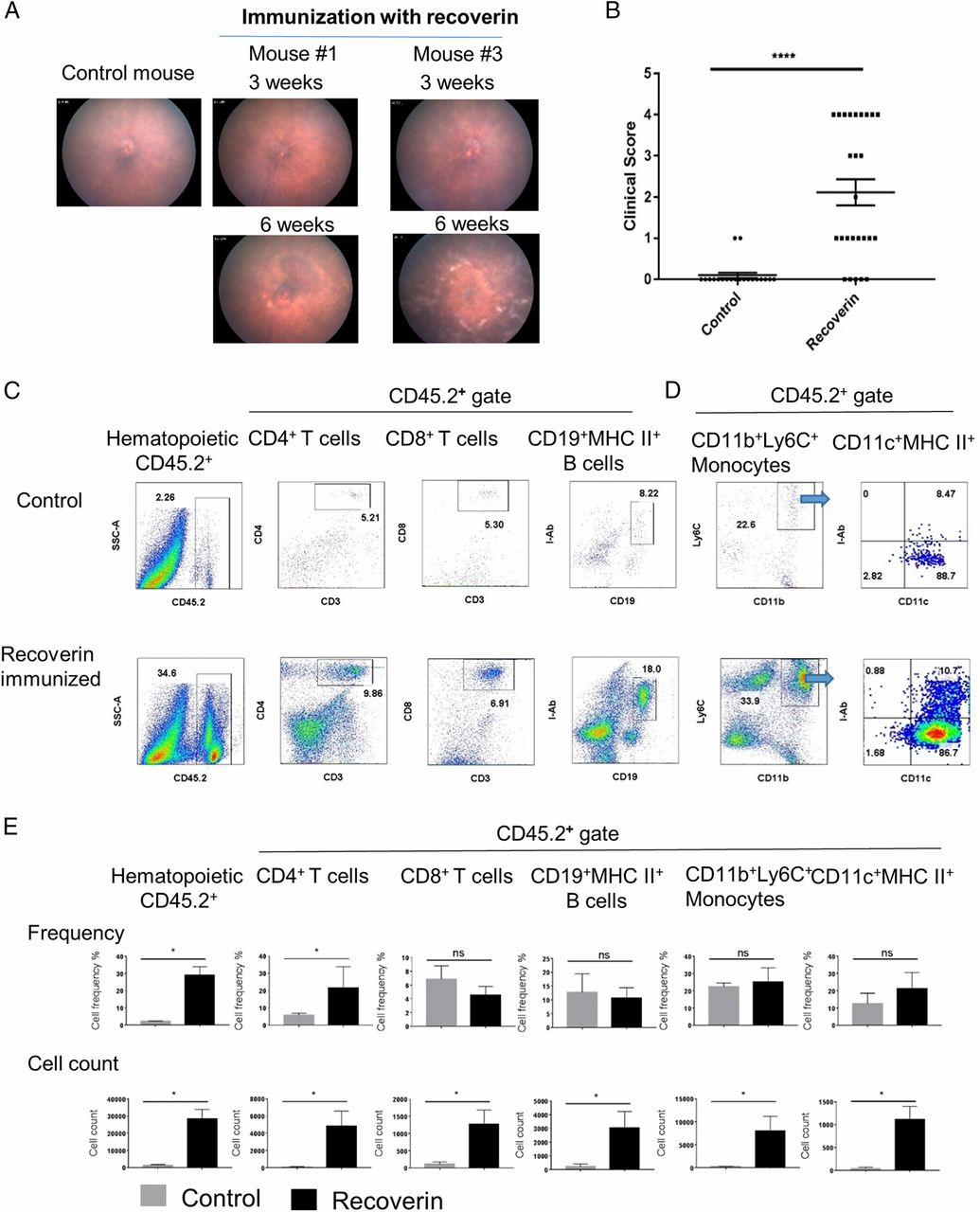Immune Cell Infiltration into the Eye Is Controlled by IL-10