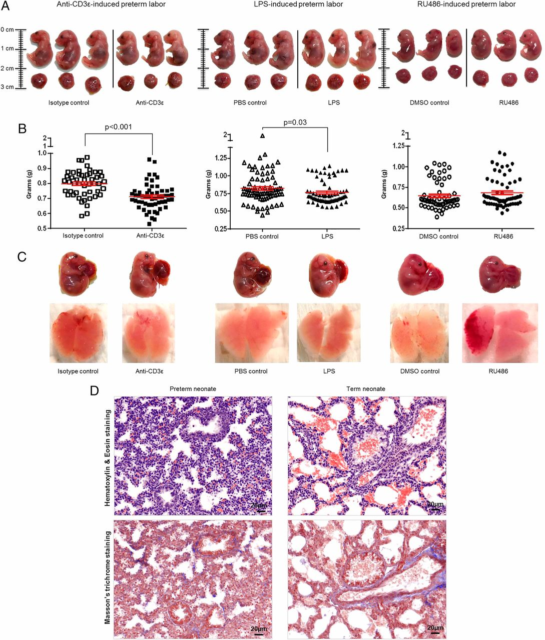 Effector and Activated T Cells Induce Preterm Labor and Birth That