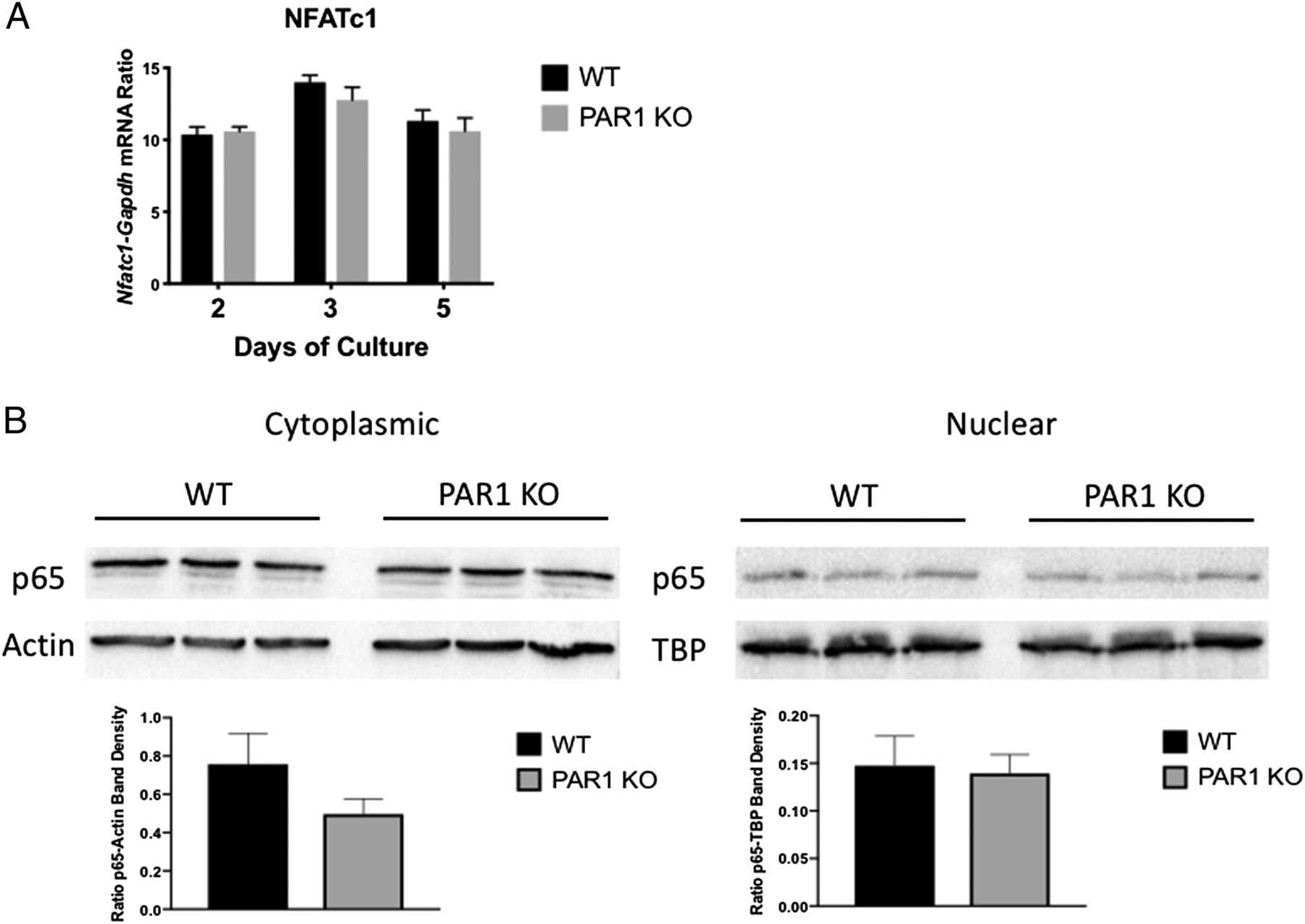 Protease-Activated Receptor 1 Deletion Causes Enhanced